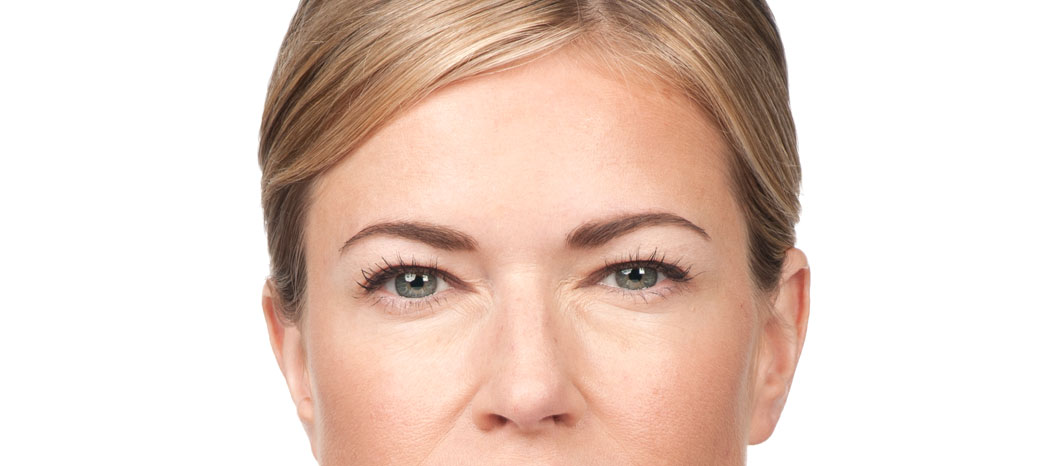 Botulinum Toxin (Type A) treatment - after Botulinum Toxin (Type A) treatment