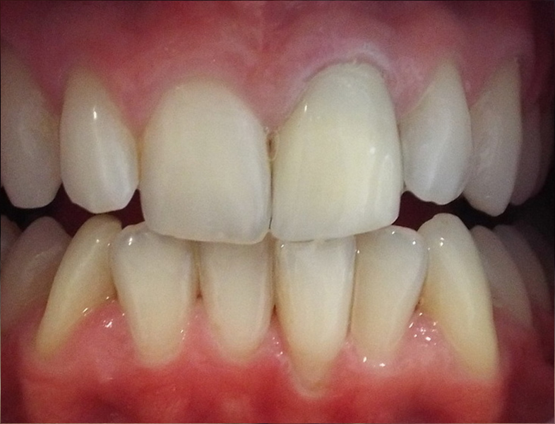 tooth whitening in douglas cork