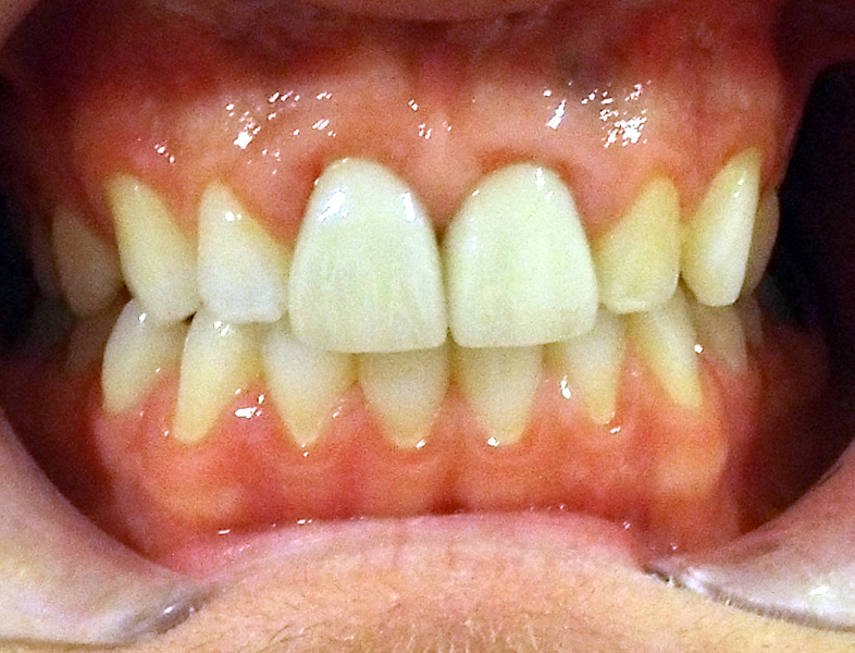 crown and whitening