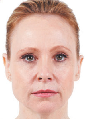 Botulinum Toxin (Type A) treatment - before Botulinum Toxin (Type A) treatment