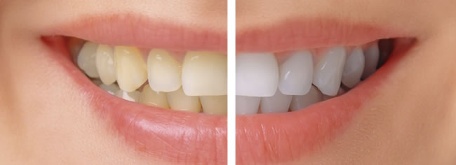 tooth whitening cork ireland